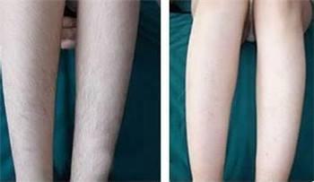 腿部脱毛用什么办法效果比较好?