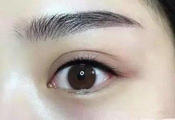 重庆纹眉失败该如何修复拯救呢