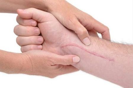 做祛疤痕修复多少钱