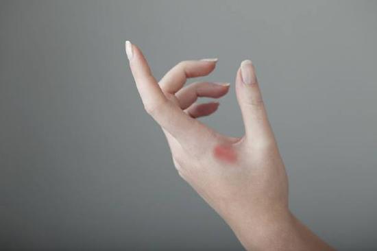 烧伤疤痕修复要注意什么