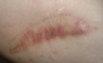 烧伤疤痕修复